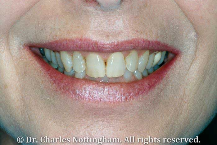 Porcelain Veneers in Boca Raton (Before)