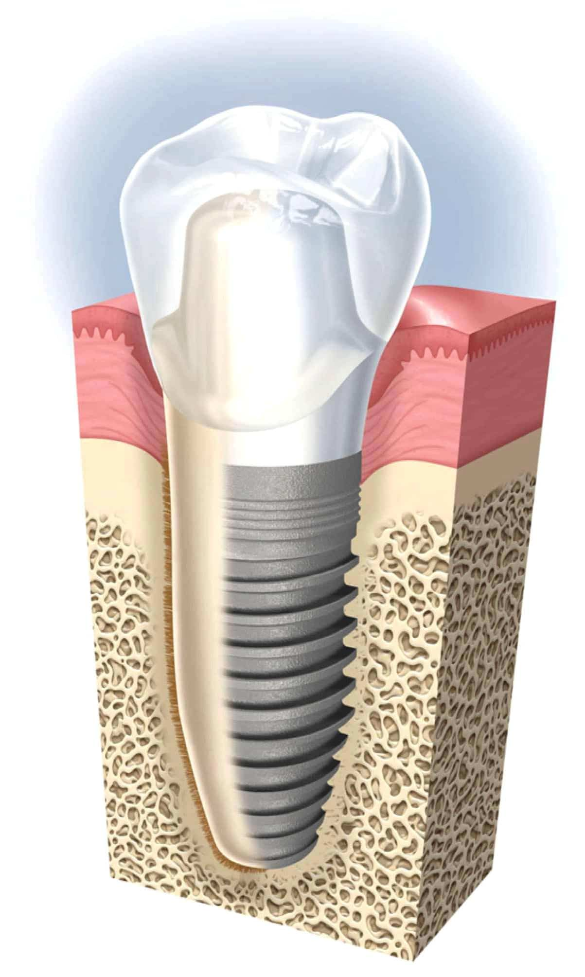 Broward Periodontist Restores Smiles One Dental Implant At A Time