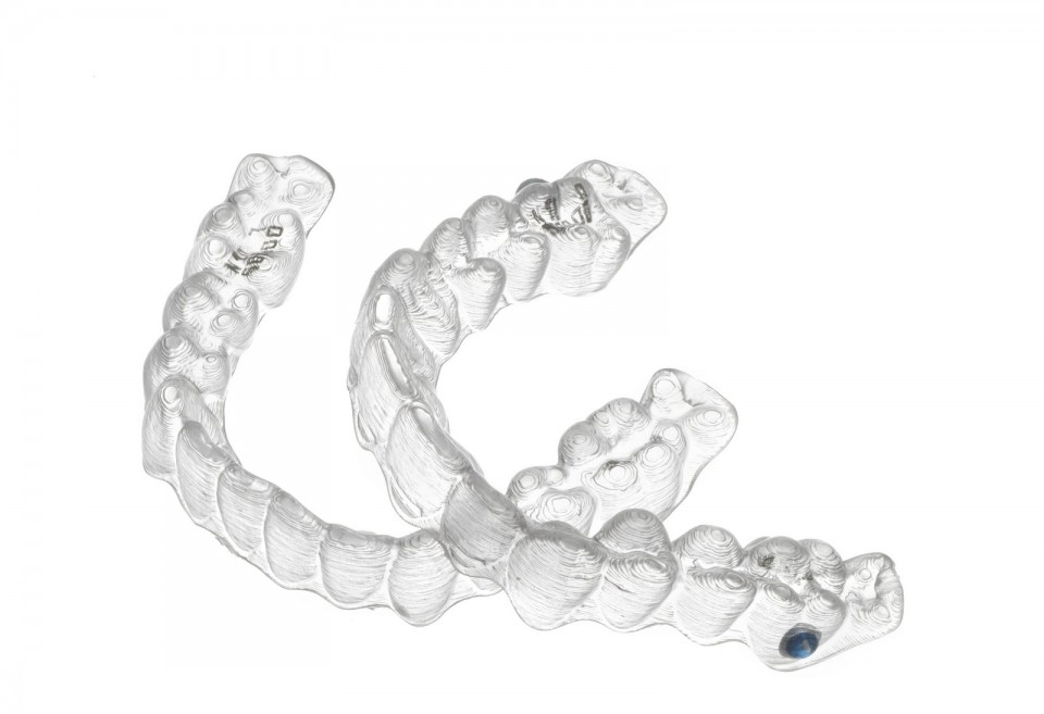 My Invisalign Experience: Exam, X-rays, Photos, and Impressions