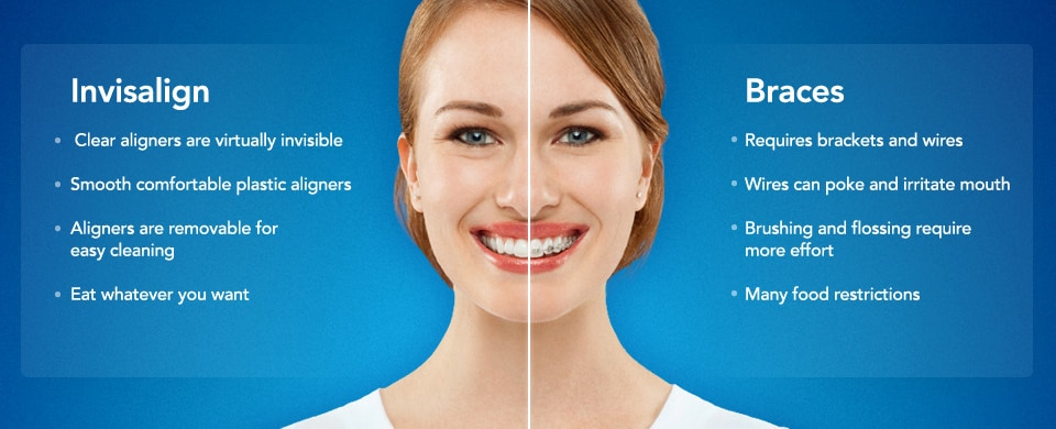All invisalign teen works