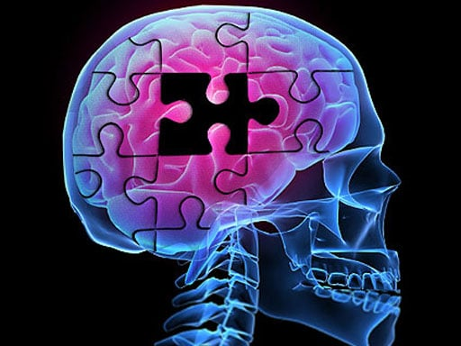 Dental Health and Alzheimers Link