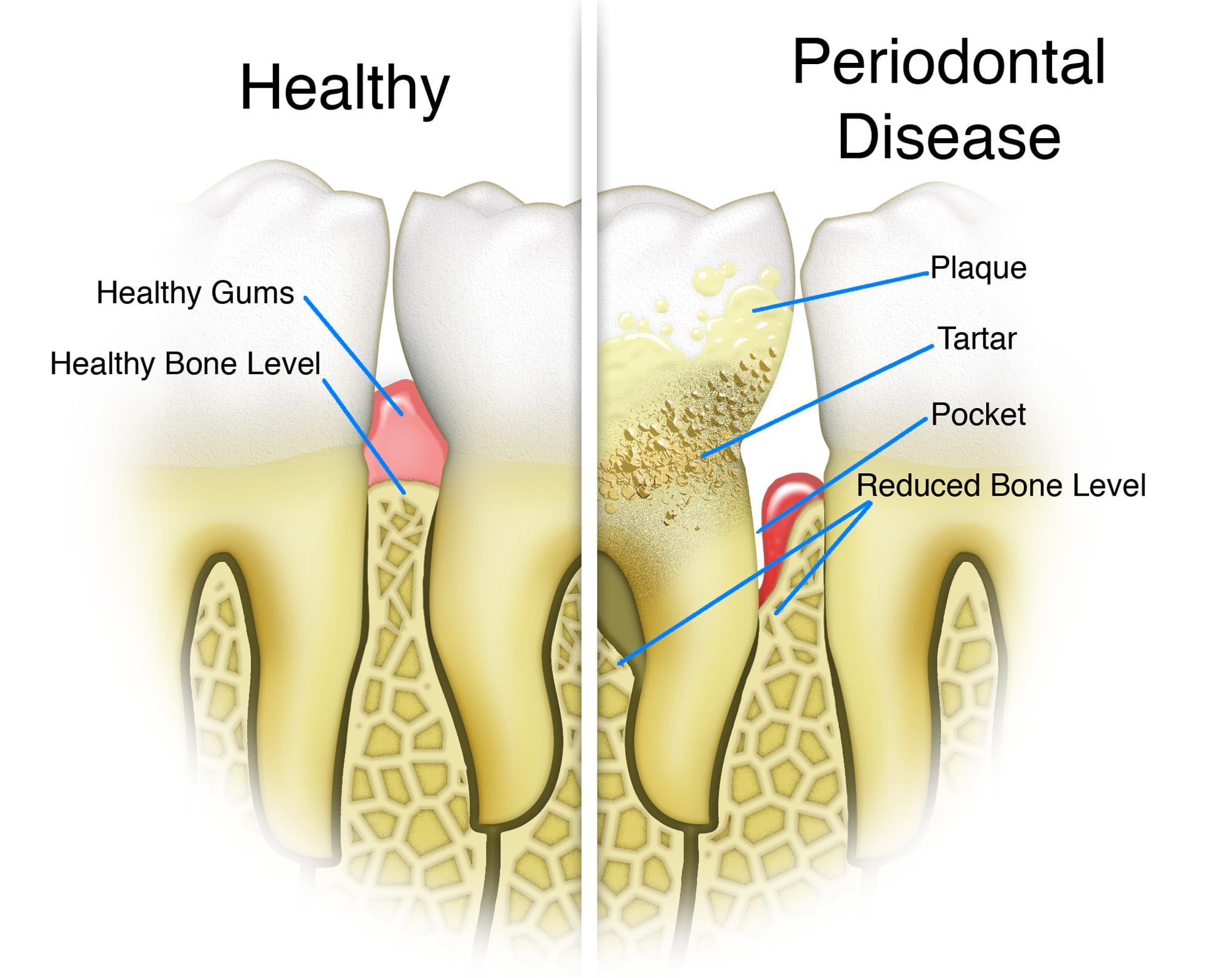 Periodontal Disease Can Cause Heart Problems or Stroke