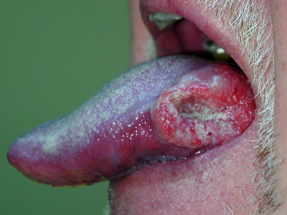 [Video] HPV Leading to Oral Cancer in Young People: Dentist