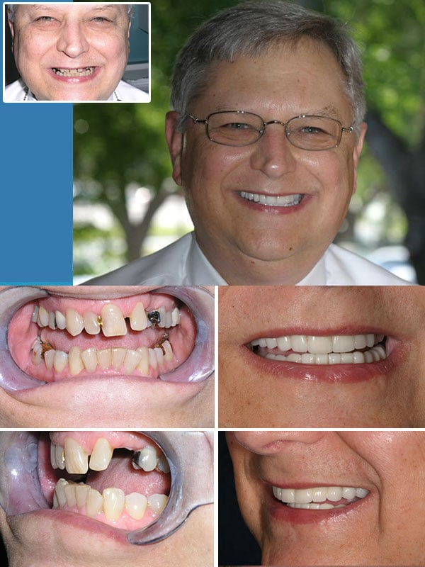 Fort Lauderdale dental implants