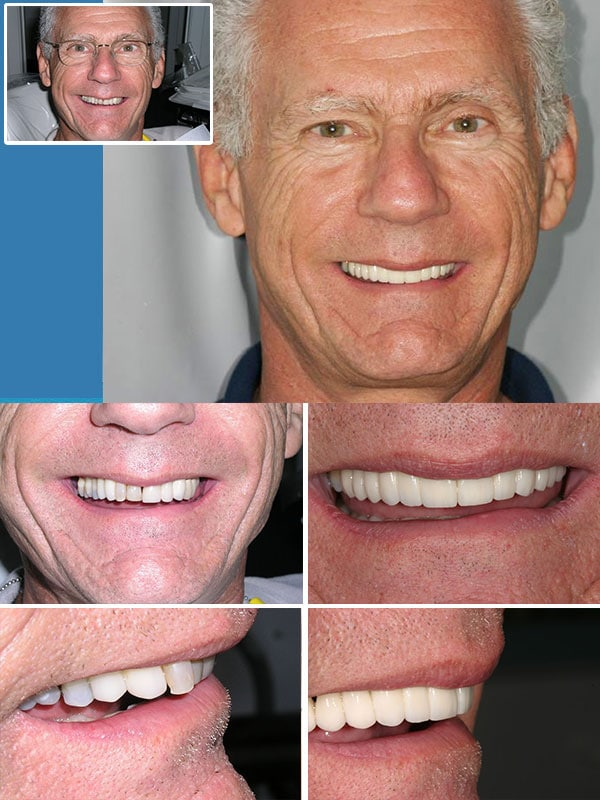 Miami Dental Implants