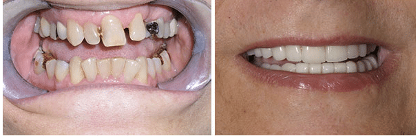 Example of Dental Extreme Makeover