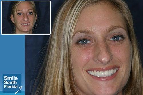 Choosing the Best Cosmetic Dentist