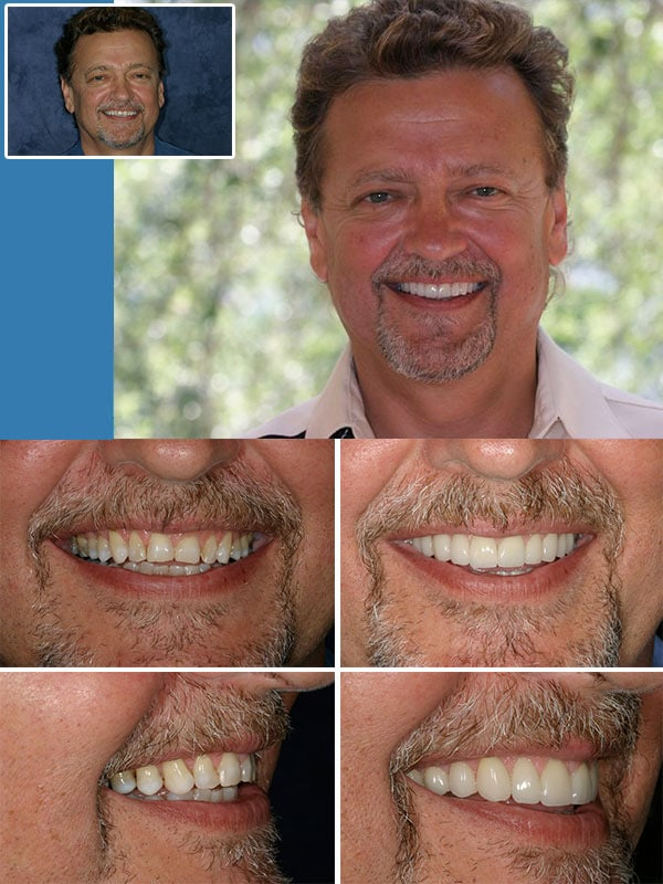 Porcelain Veneers Ft. Lauderdale