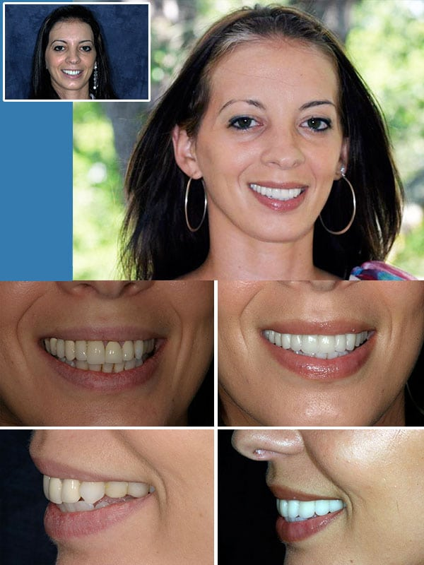 Cosmetic Dentist Fort Lauderdale