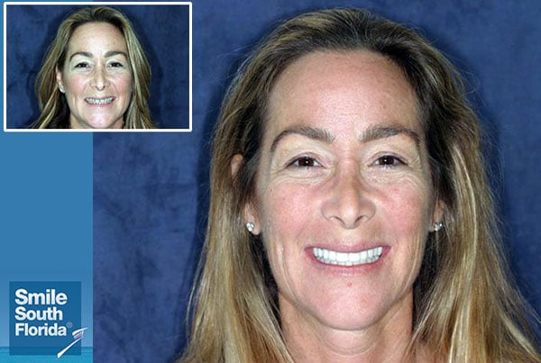 Dental Facelift Fort Lauderdale