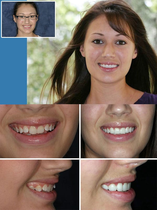 Discolored Teeth Fort Lauderdale