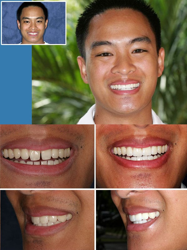 Ft Lauderdale Porcelain Veneers
