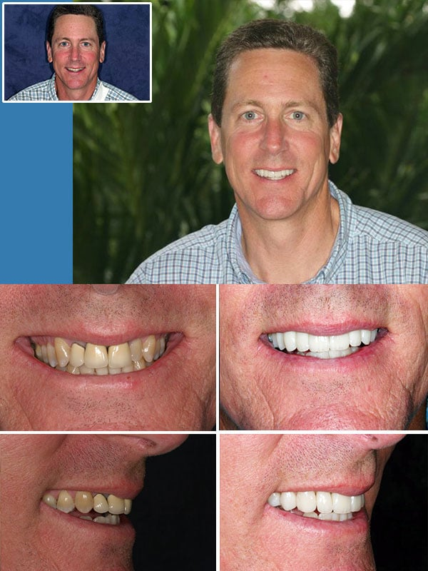 Cosmetic Dentist Ft. Lauderdale