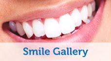 Inflamed Tissue, Fractured and Over Contoured Crowns, Misaligned Teeth, Poor Shape