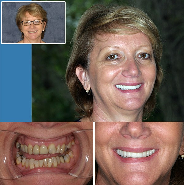 Dental Bridge Fort Lauderdale