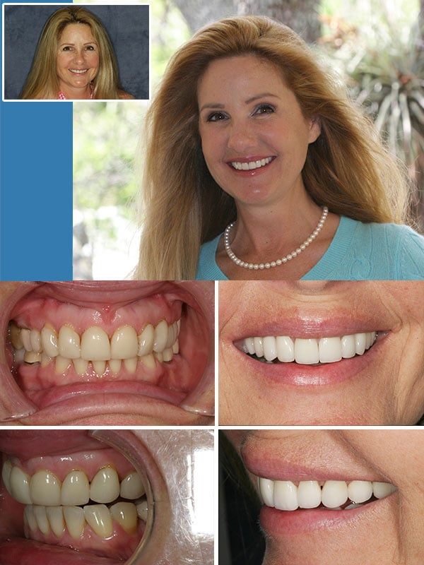 Old Crowns and Veneers