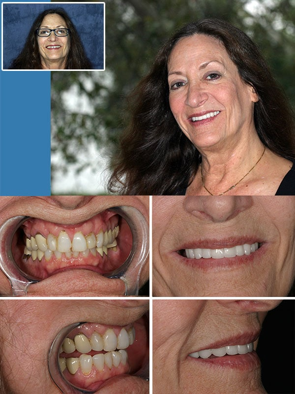 Cosmetic Dentistry Fort Lauderdale