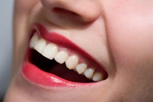 Dental Implants Fort Lauderdale – Improve your Smile