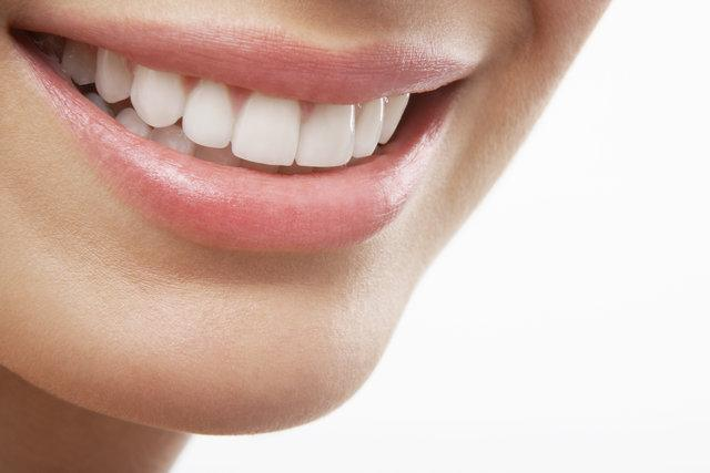 7 Advantages of Porcelain Veneers You Didn't Know